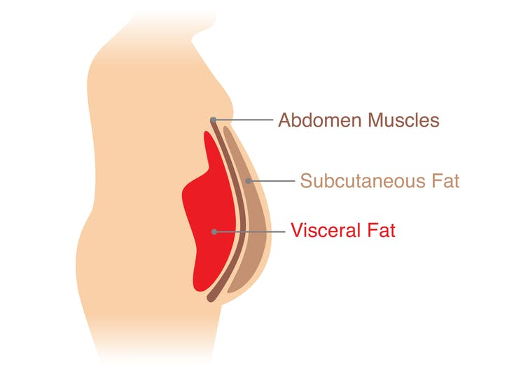A diagram depicting a cross-section of the layers of tissue in the abdomen (abdomen muscles, subcutaneous fat, visceral fat)